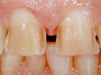 Preparazione dei denti per le faccette in ceramica