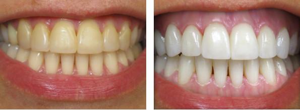 Igiene Dentale e Prevenzione